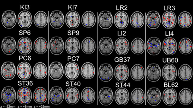 Acupuncture points and their effect on the brain.