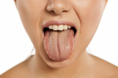 What is Tongue Diagnosis?