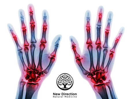 Clinical Cases of Rheumatoid Arthritis Treated with Acupuncture and Chinese Herbal Medicine