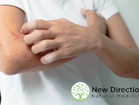 Treating Herpes Zoster (Shingles) Pain with Acupuncture