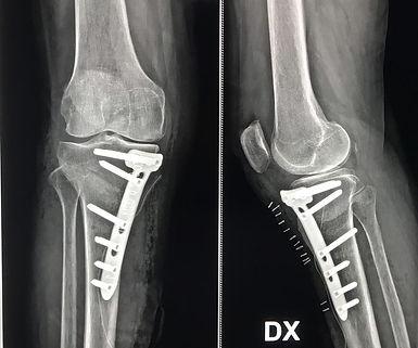 osteotomia.jpg