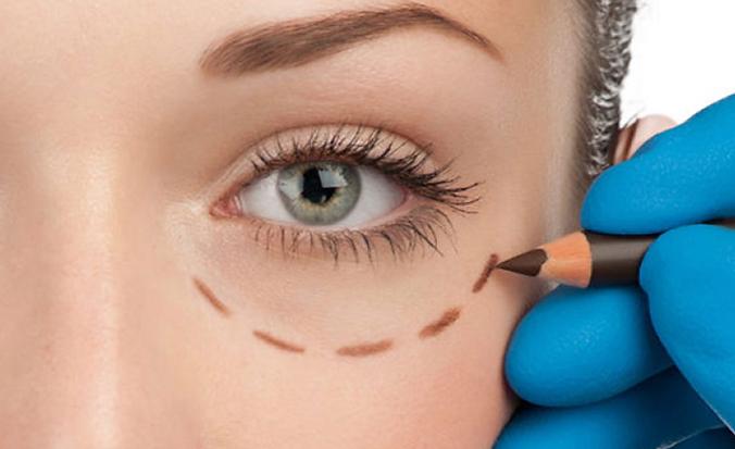 Oculoplasty.png