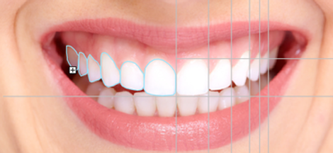 planejamento-virtual sorriso.png