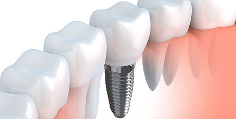Especialização-em-Implante.jpg