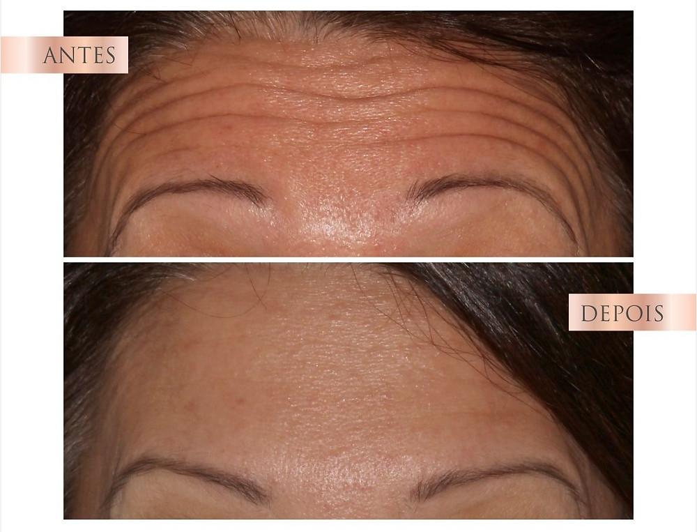 botox na testa - antes e depois