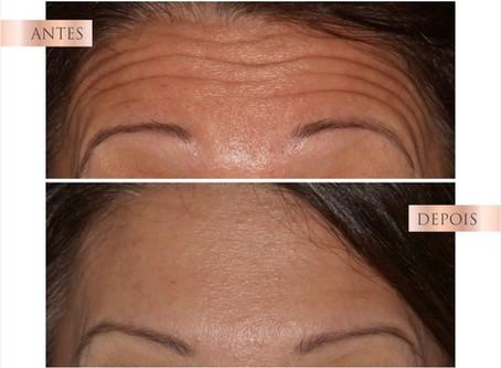 Botox na prevenção de rugas dinâmicas