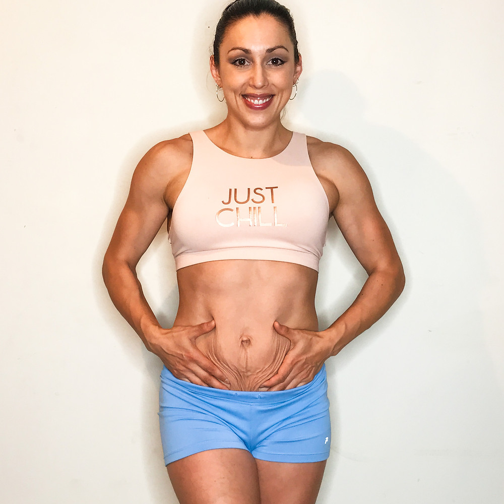 Postpartum journey stomach abs after babies