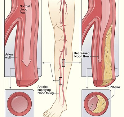 September is Peripheral Artery Disease (PAD) Awareness Month