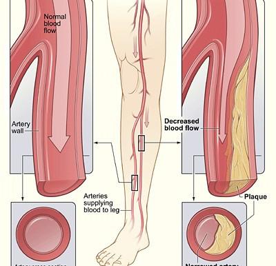September is Peripheral Artery Disease (PAD) Awareness Month