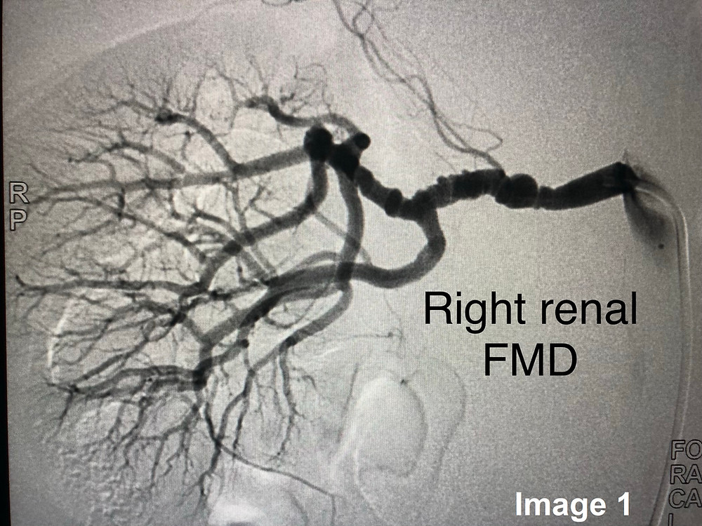Right Renal Angiography