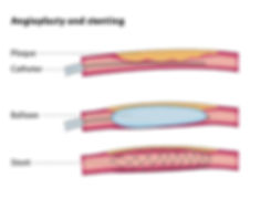 Angioplasty and Stenting Schematics.
