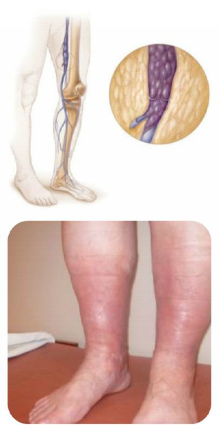 Deep Vein Thrombosis Early Symptoms Signs Causes Treatments