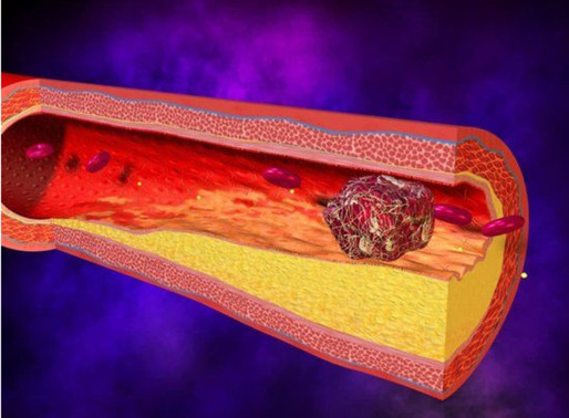 When can I stop my blood thinner after a blood clot?
