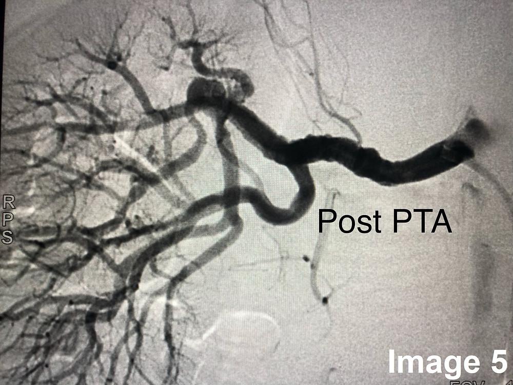 Post PTA Angiography