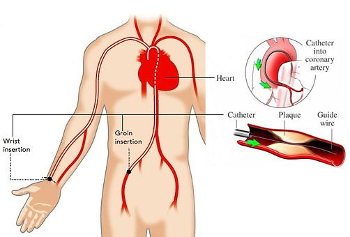 cardiac catheterization schematics. Human body schematic with main artheries shown going from heart one pair towards the wrists another pair going towards the groin. As well as points of catheter insertion at the wrist and groin