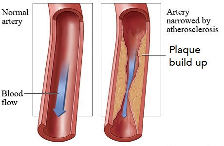 Atherosclerosis schematic. One artery shown clean with normal blood flow another one shown with plaque buildup limiting blood flow