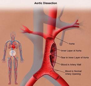 AAA dissection.jpg