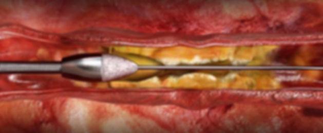 Rotablation procedure