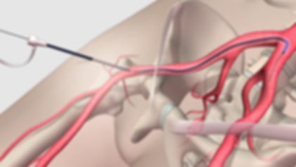 Peripheral angioplasty and stenting