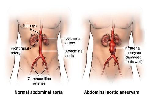 Abdominal Aortic Aneurysm.JPG