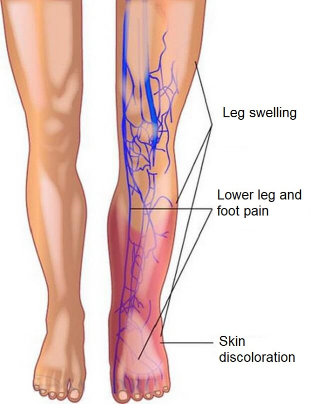 Lower leg pain and skin discoloration may be a symptom of Deep Vein Thrombosis