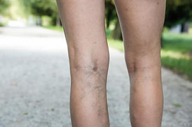 varicose-veins-in-legs.jpg