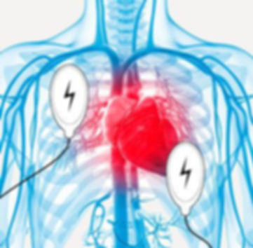 Cardiversion pads on body with artheries and heart