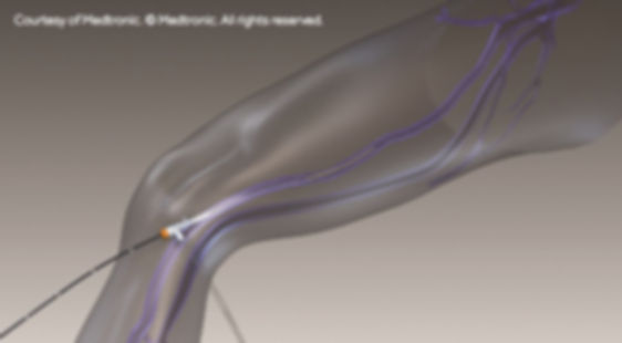 ClosureFast-Catheter-Insertion-Illustrat