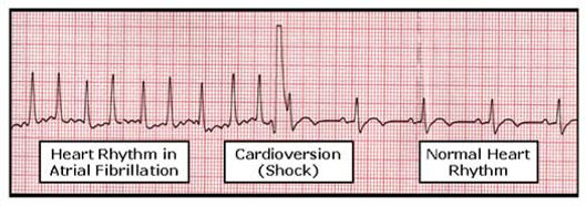 ECG with heart rhythm in Atrial Fibrillation, during cardioversion (shock) and normal heart rhythm