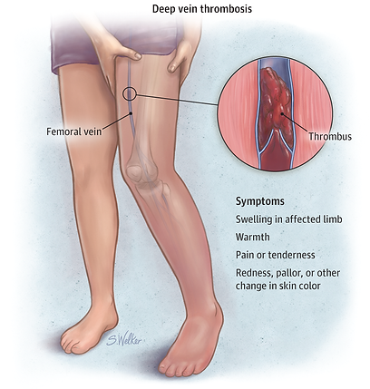 Deep Vein Thrombosis.png