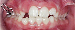 Orthodontist Braces Crossbite Posterior