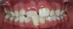 Orthodontist Braces Crossbite Anterior