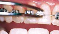 Orthodontist Braces Loose Bracket Pop off