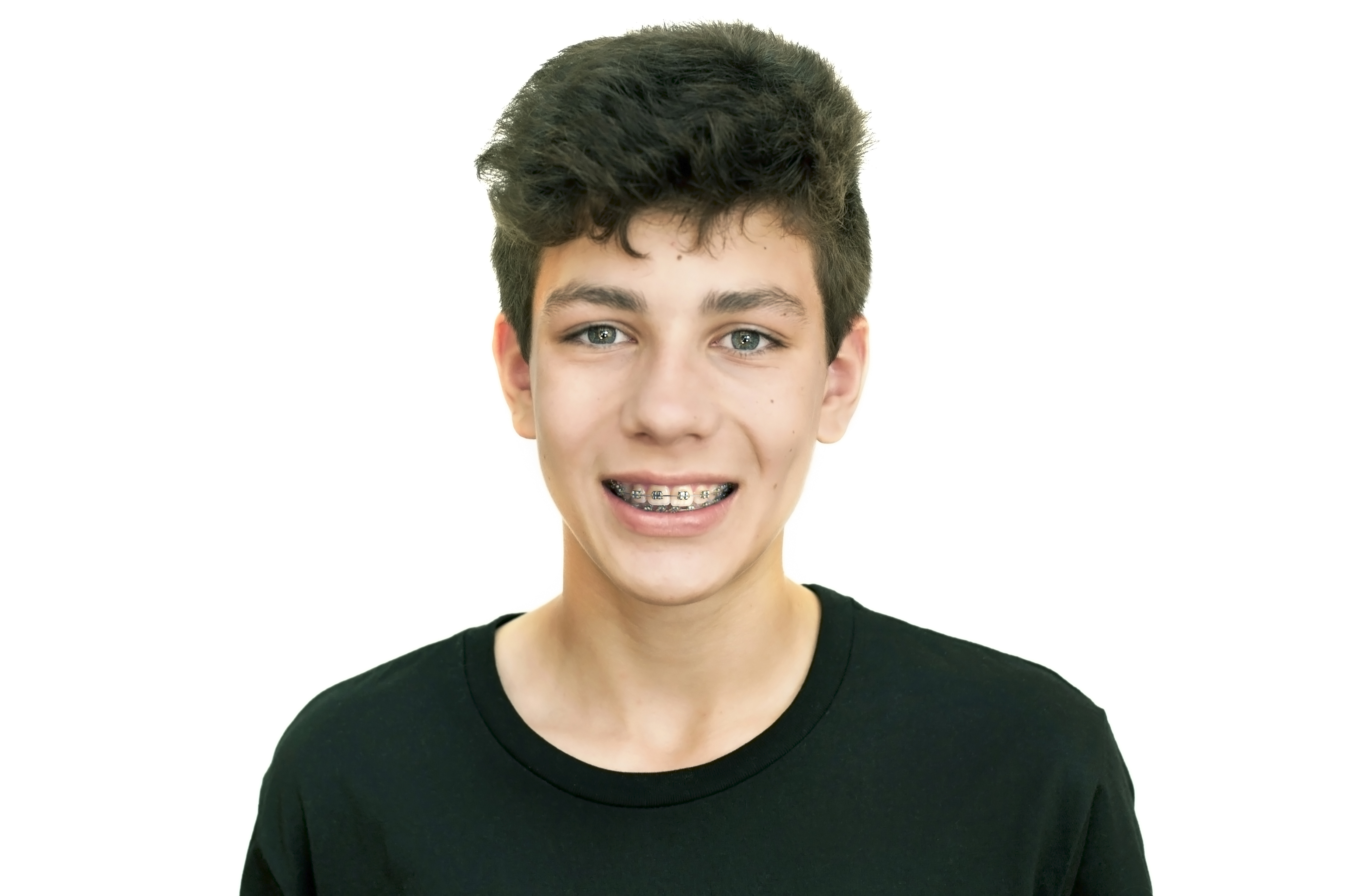 Beautiful teenager in a black shirt on a white background smiling. Clearly visible braces on teeth