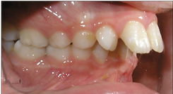Orthodontist Braces Overbite
