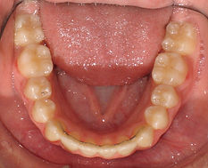 Orthodontist Braces Retainers Relapse Wire Fixed lower teeth