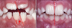 Orthodontist Braces Midline Teeth