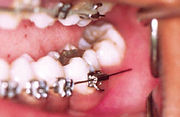 Orthodontist Braces Wire Sticking out