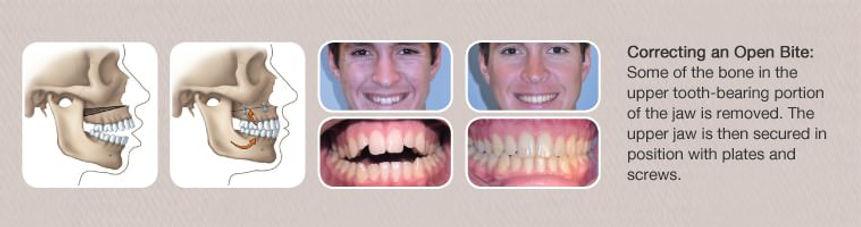 Orthodontist Braces Jaw Surgery Open Bite