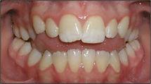 Orthodontist Braces Openbite