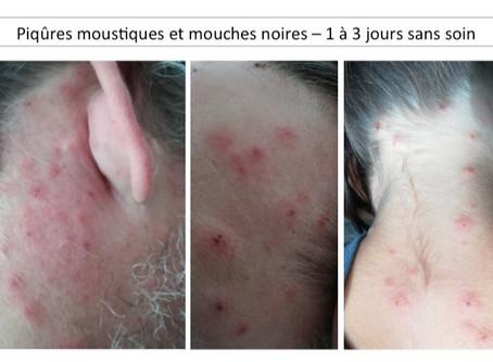 Piqûre moustique/mouche noire. Stopper les démangeaisons, l'inflammation et le risque d'infection.