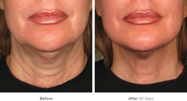 before_after_ultherapy_results_neck3.jpg