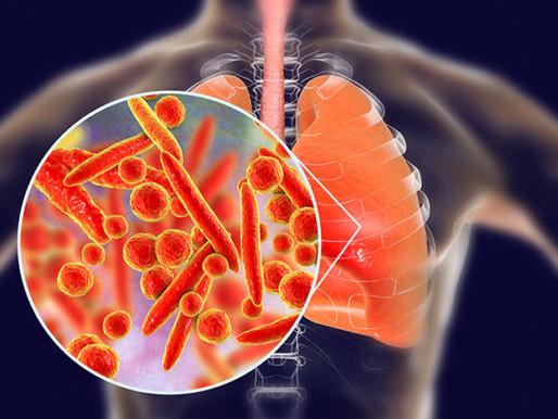 El peligro de la neumonía bacteriana por el uso prolongado de la mascarilla