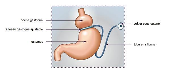 chirurgie de l'obésité sète