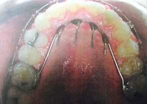 dentist office near me, teeth whitening dentist, clear braces cost