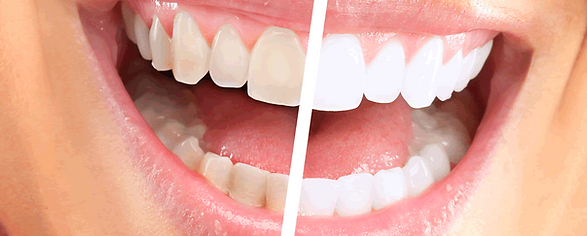dentist office near me, teeth whitening dentist, inviasalign vs braces