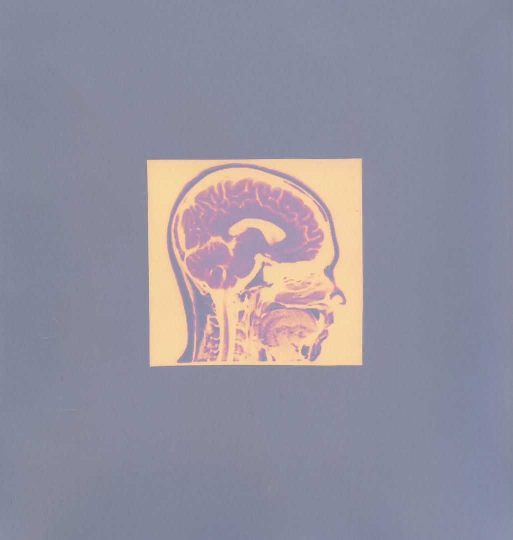 Brain in Profile