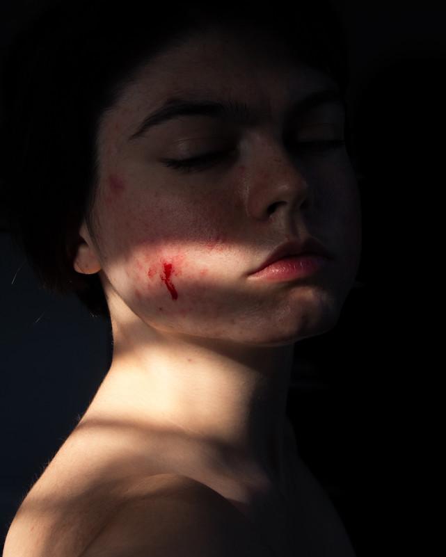I Can't Escape Bleeding