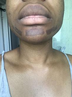 dermatologue bruxelles brulure par esthéticienne.jpg