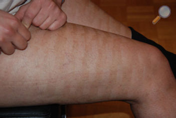 dermatologue bruxelles epilation laser non medecin lampe flash.jpg